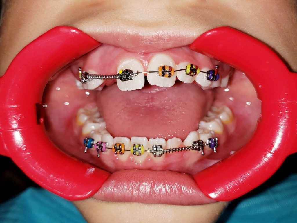 Braces Before and After Overbite: Causes, Symptoms, Treatments
