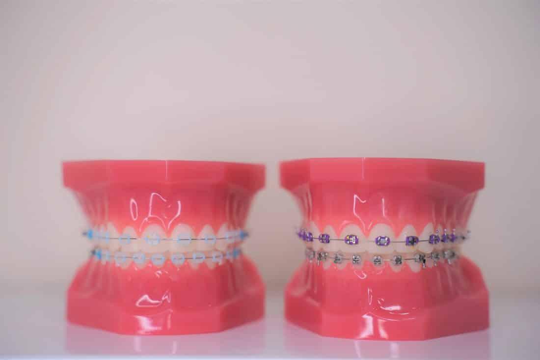 best-orthodontic-braces