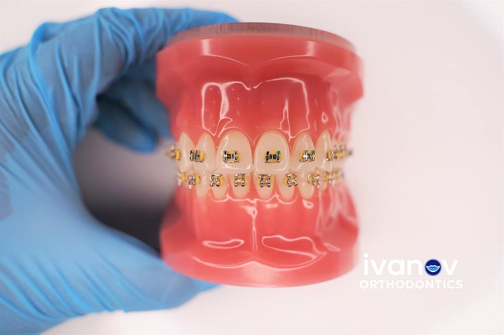 gold-braces-at-ivanov-orthodontic-experts
