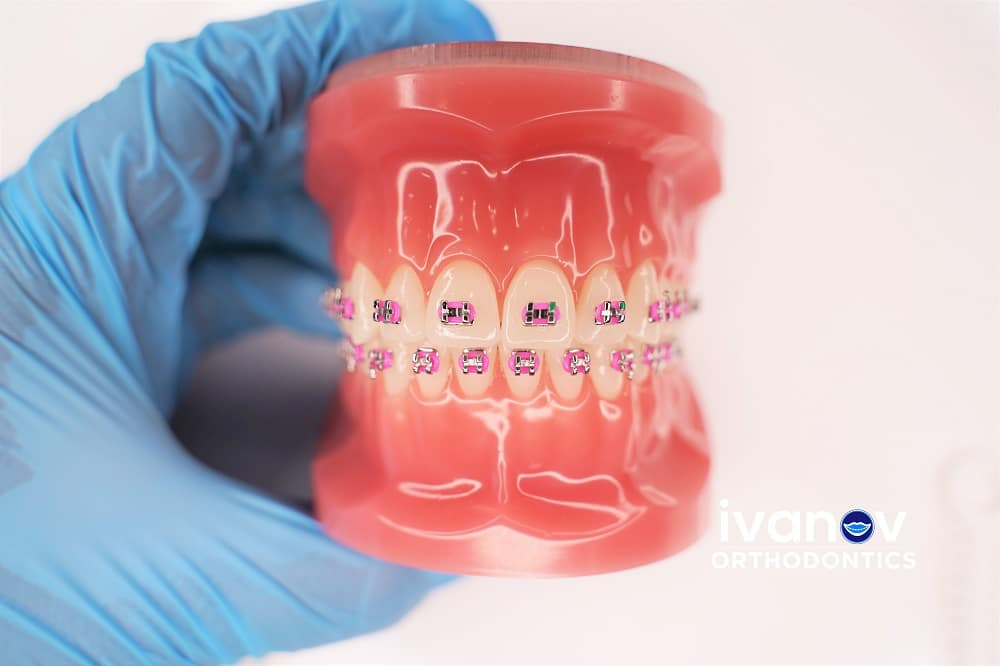 pink-braces-at-ivanov-orthodontic-experts
