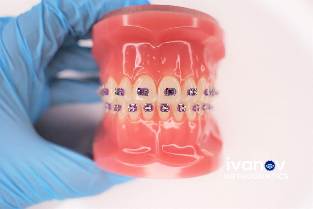 purple-braces-at-ivanov-orthodontic-experts