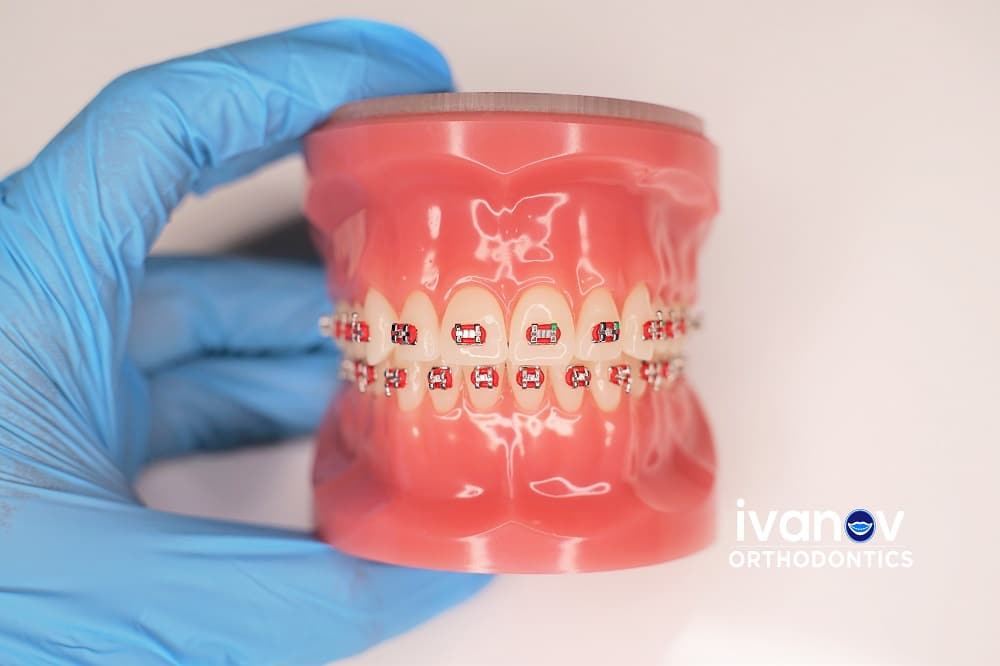 red-braces-at-ivanov-orthodontic-experts