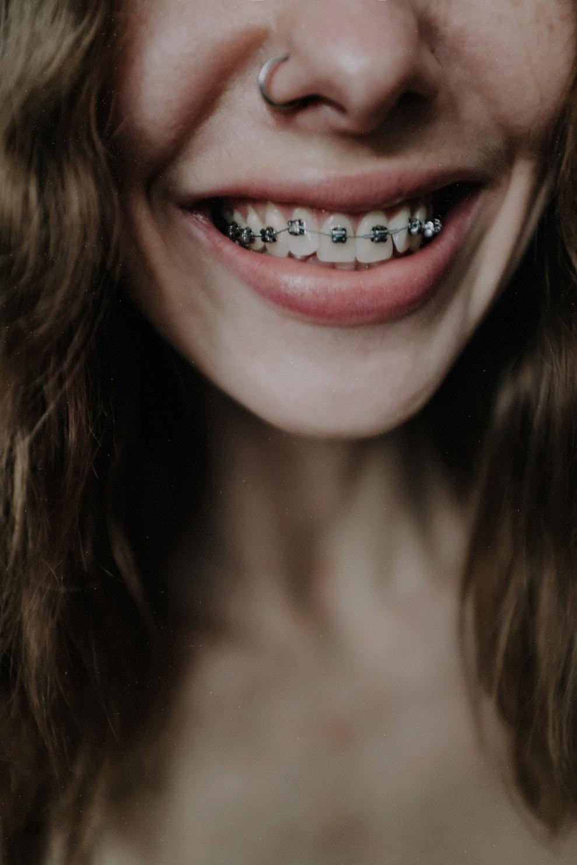 orthodontic-treatment-adults