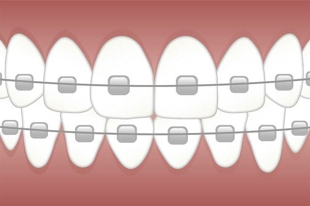 what-kind-of-problems-can-an-overbite-cause