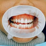 Why Do My Gums Hurt Painful?